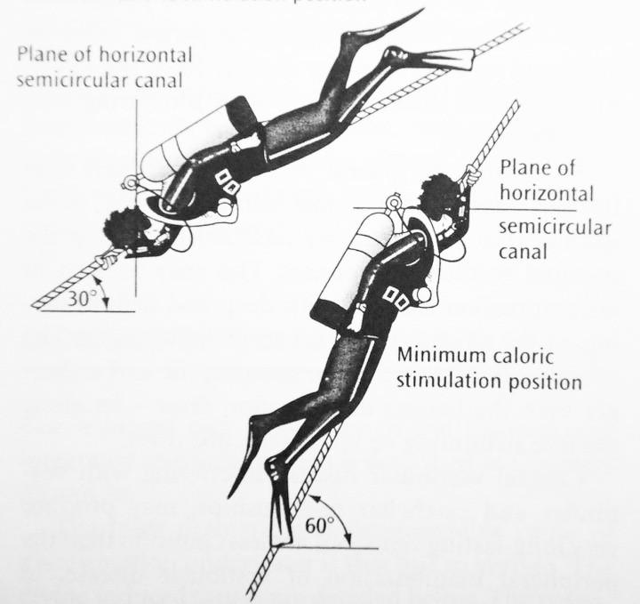 Caloric Vertigo from Diving Position