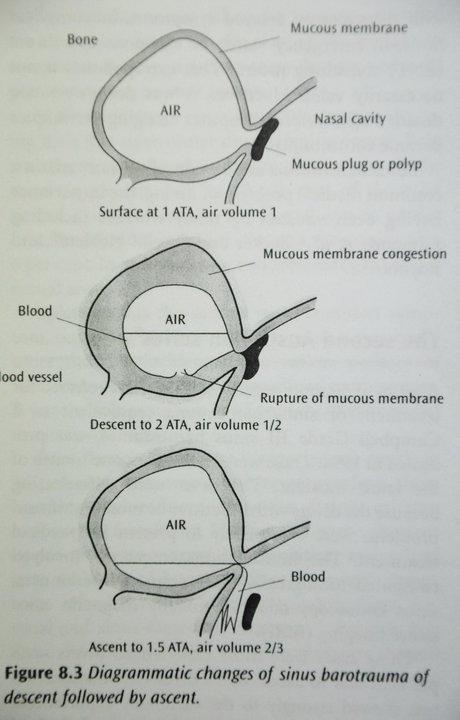 Diagrammatic Changes of Sinus Barotrauma